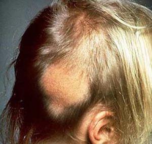 Caída de cabello en mujeres