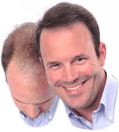 Es necesario cuanto el aceite de ricino la máscara para los cabellos