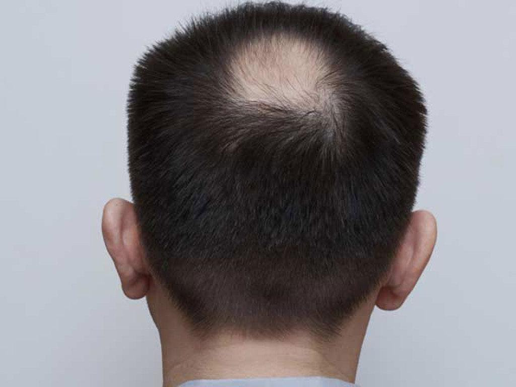 Indeleble la máscara para el crecimiento de los cabello