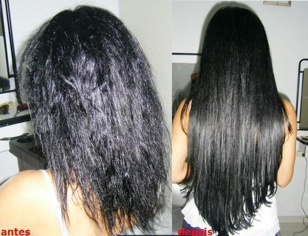 La caída de los cabello de la causa y el tratamiento a las mujeres al embarazo