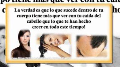Tratamiento para Caída del pelo